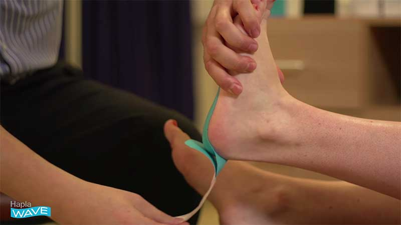 Hapla Wave Taping For Plantar Fasciitis